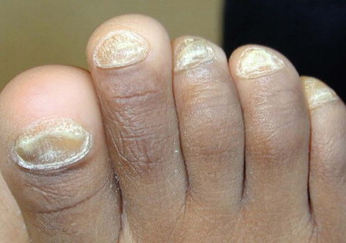 Nail Dystrophy - an overview | ScienceDirect Topics