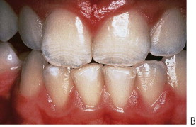Dental Fluorosis - an overview | ScienceDirect Topics