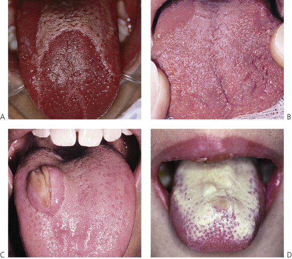 Geographic Tongue - an overview | ScienceDirect Topics