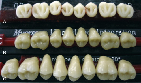 Dental Porcelain - an overview   ScienceDirect Topics