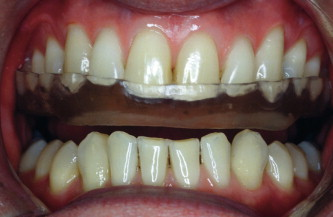 occlusal splints and management of the occlusion sciencedirect sciencedirect com
