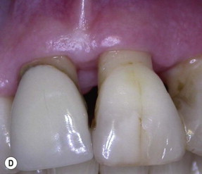 Gingiva Disease - an overview | ScienceDirect Topics