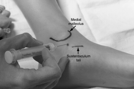 Medial Malleolus - an overview | ScienceDirect Topics