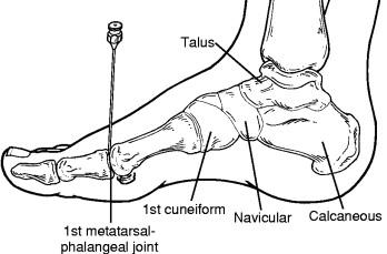 Metatarsophalangeal Joint - an overview | ScienceDirect Topics