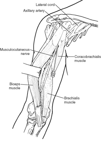 Coracobrachialis Muscle - an overview | ScienceDirect Topics