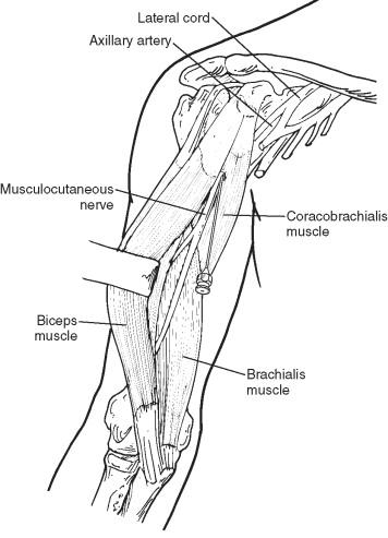Coracobrachialis Muscle