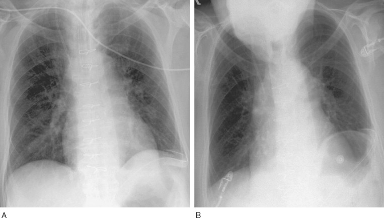 Thoracic Diaphragm An Overview Sciencedirect Topics