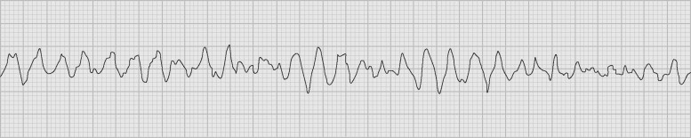 polymorphic ventricular tachycardia an overview sciencedirect topics