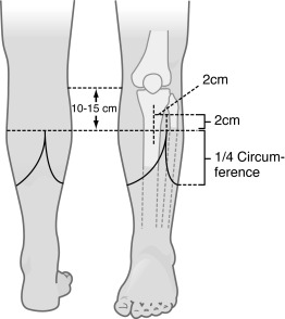 Below Knee Amputation - an overview | ScienceDirect Topics