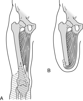 Amputation of Lower Limb - an overview | ScienceDirect Topics