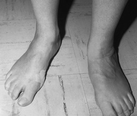 Flatfoot - an overview | ScienceDirect Topics