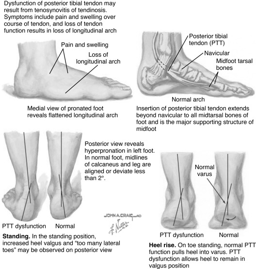 Tibialis Posterior Muscle An Overview ScienceDirect Topics