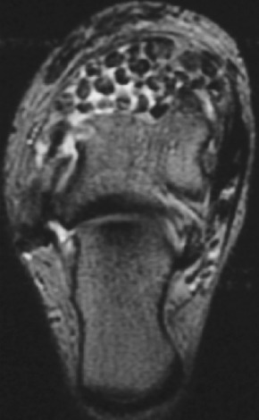 Chondromatosis - an overview | ScienceDirect Topics