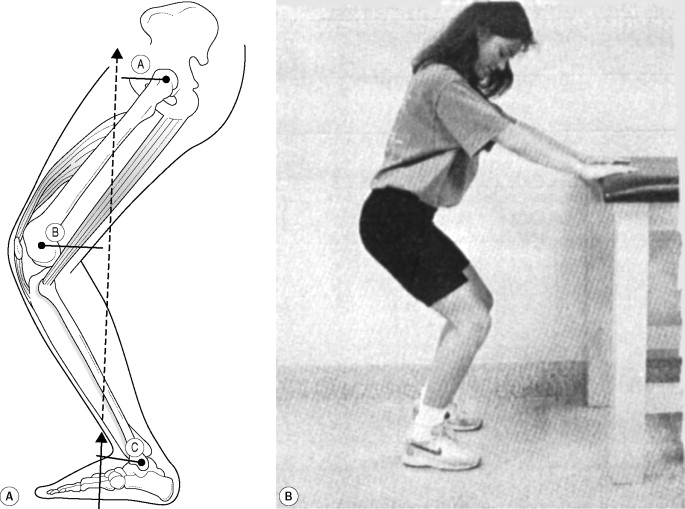 Isotonic Exercise - an overview | ScienceDirect Topics