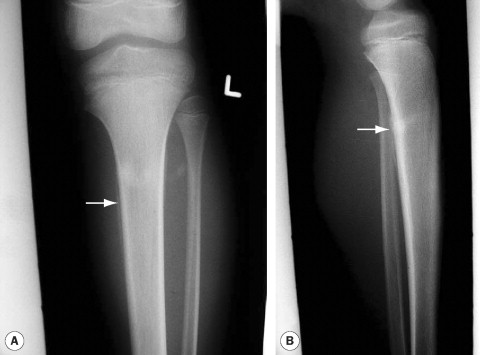 Tibial Shaft - an overview | ScienceDirect Topics
