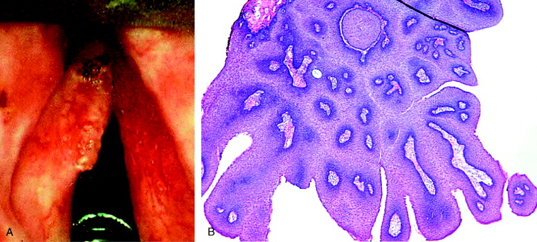 Laryngeal Papillomatosis An Overview Sciencedirect Topics