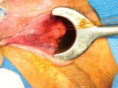 Internal Hemorrhoids - an overview | ScienceDirect Topics