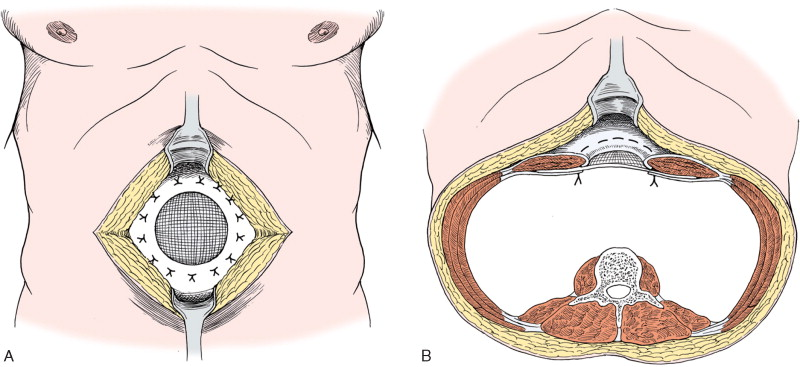 Epigastric Hernia - an overview   ScienceDirect Topics