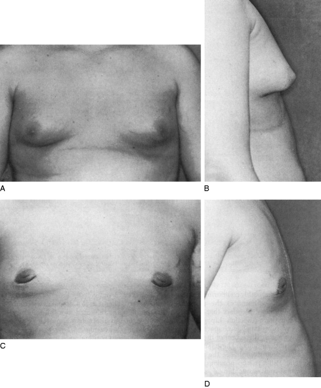 Male Breast - an overview | ScienceDirect Topics