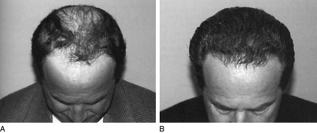 Scalp Hair - an overview | ScienceDirect Topics