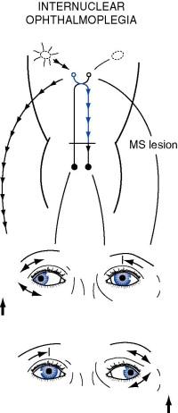Abnormal Sensation - an overview   ScienceDirect Topics