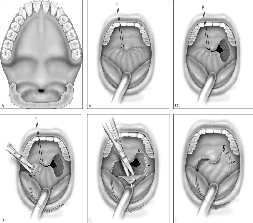 Marsupialization - an overview | ScienceDirect Topics