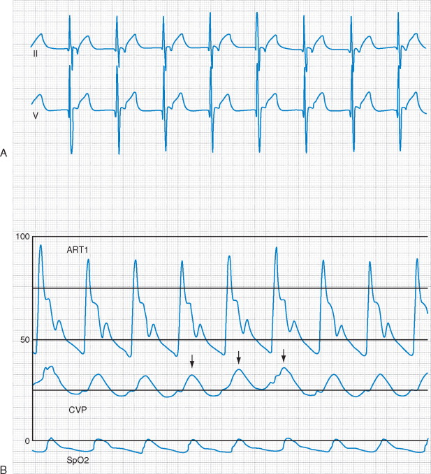 Junctional Rhythm - an overview | ScienceDirect Topics