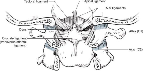 Second Cervical Vertebra - an overview | ScienceDirect Topics