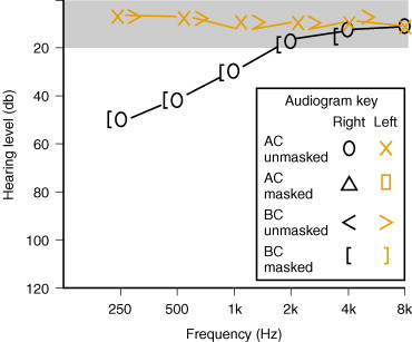 Audiogram An Overview Sciencedirect Topics