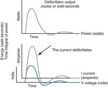 Defibrillation - an overview | ScienceDirect Topics