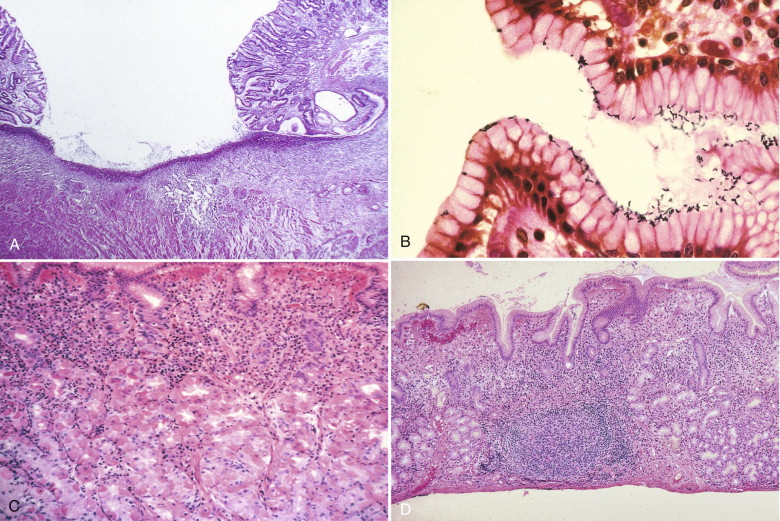 Gastritis - an overview   ScienceDirect Topics