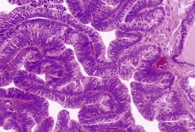 cancer de prostata intraductal