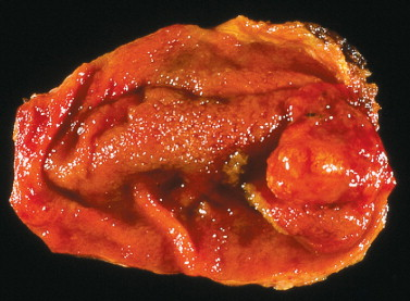 Cholecystectomy - an overview | ScienceDirect Topics