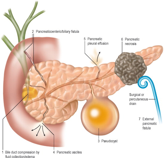 Sphincter of Oddi Dysfunction - an overview | ScienceDirect