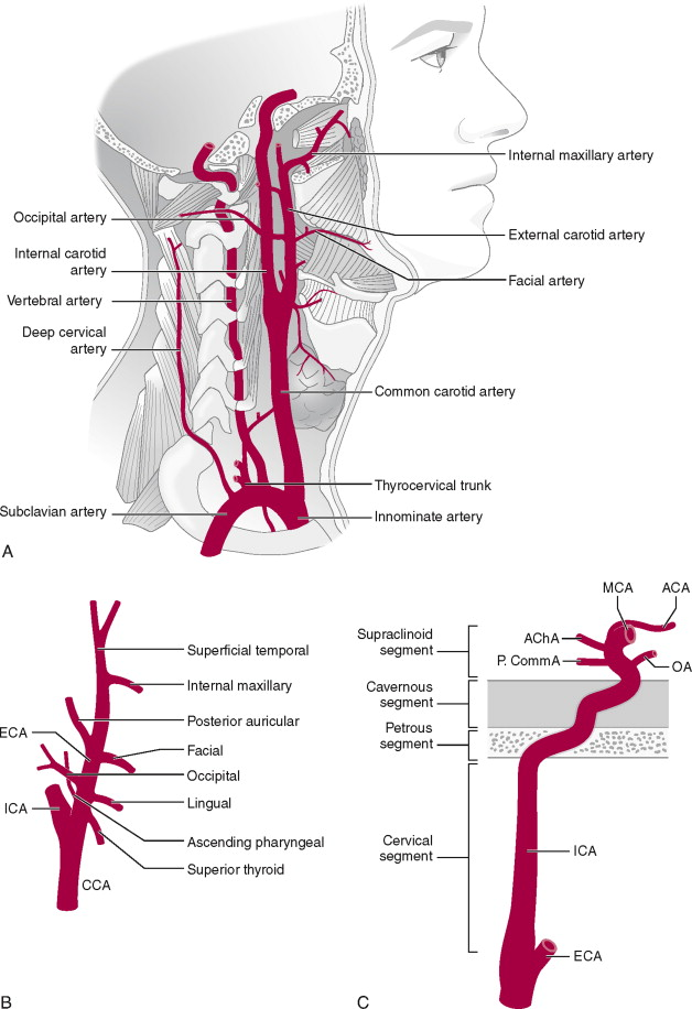 Common Carotid Artery An Overview Sciencedirect Topics