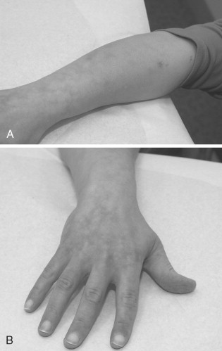 Sneddon's Syndrome - an overview | ScienceDirect Topics