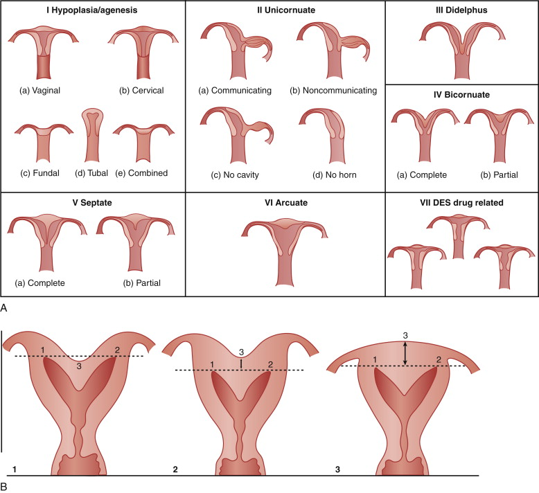 Uterine Malformation An Overview Sciencedirect Topics