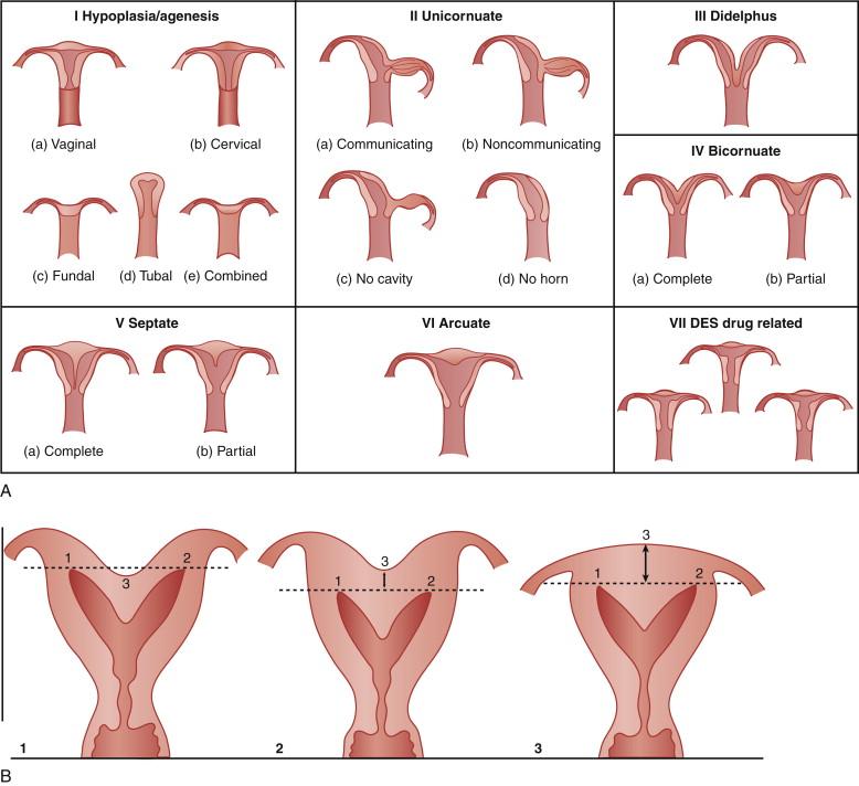Uterine Malformation - an overview | ScienceDirect Topics