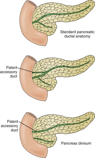 Pancreas Divisum - an overview | ScienceDirect Topics