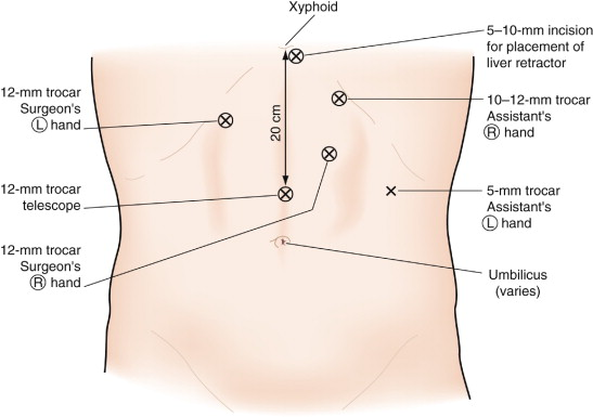 Roux En Y Gastric Bypass An Overview Sciencedirect Topics