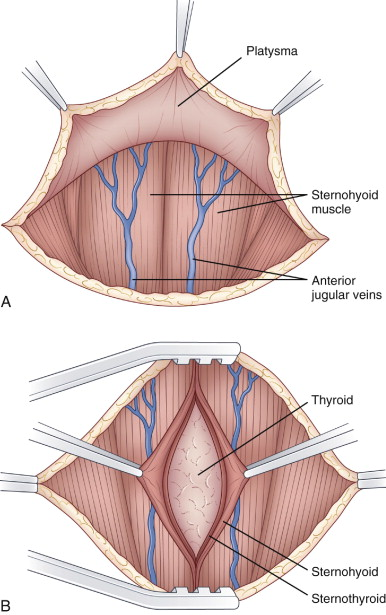 Thyroidectomy An Overview Sciencedirect Topics