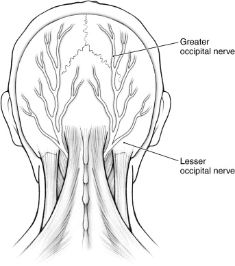 Greater Occipital Nerve An Overview Sciencedirect Topics