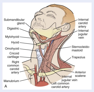 Cervical Lymph Node - an overview   ScienceDirect Topics