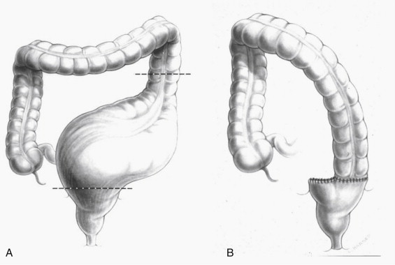 Sigmoidectomy - an overview   ScienceDirect Topics