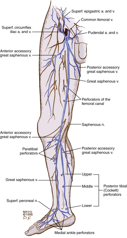 Perforator Vein An Overview Sciencedirect Topics