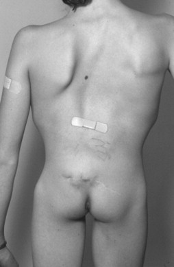 Skin Dimple - an overview | ScienceDirect Topics