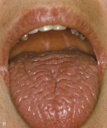 Oral Function - an overview | ScienceDirect Topics