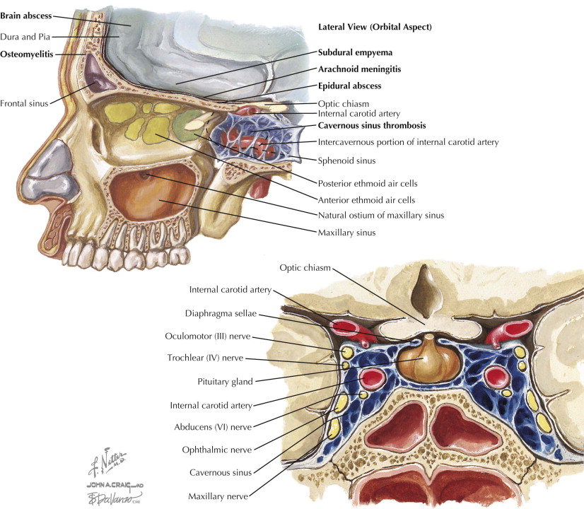 Ethmoid Bone An Overview Sciencedirect Topics