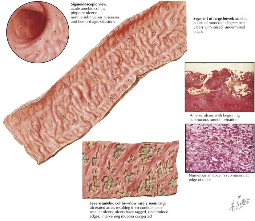 Large Intestine Mucosa An Overview Sciencedirect Topics