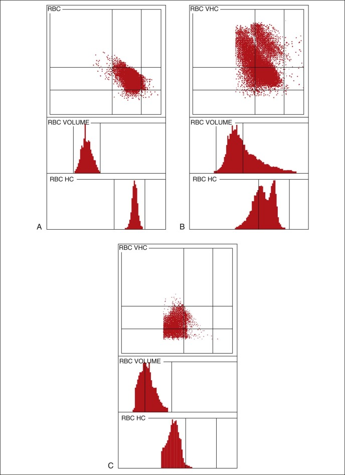 Platelet Distribution Width - an overview | ScienceDirect Topics
